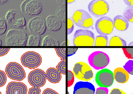 Tecnicas de Analisis de Imagen Tratamiento y Cuantificacion de la Imagen Digital