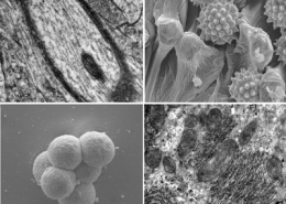 Course Introduction to Electron Microscopy for Life Sciences